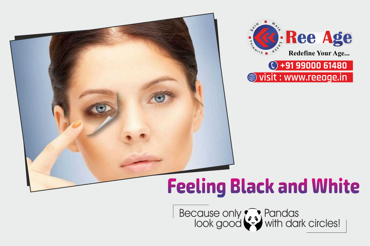 Feeling Black and White Tips to remove Dark eyes