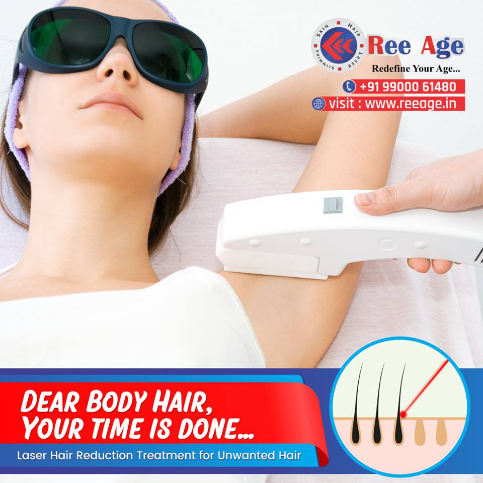 CO2 Laser for Hair Reduction by ReeAge Clinic, Bangalore